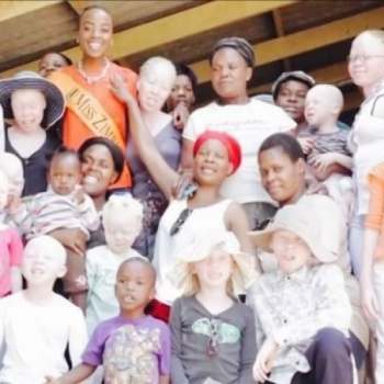 Let's Help Our Friends Living With Albinism